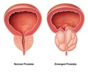 Prostata y Hipertrofia de próstata